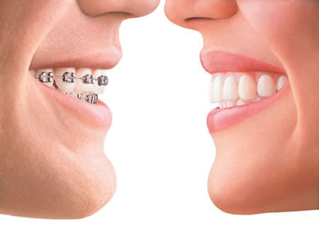 orthodontics and Dentist | Simon Pong Oakville Dental