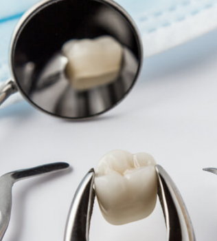 Wisdom Teeth Removals: What to Expect